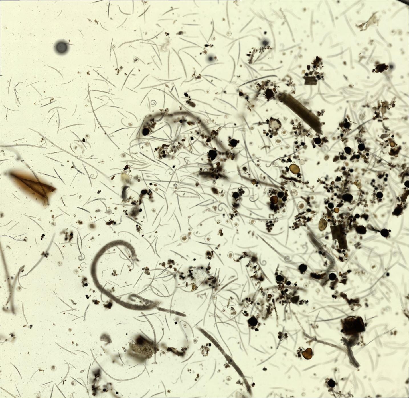 nematodes viewed through microscope